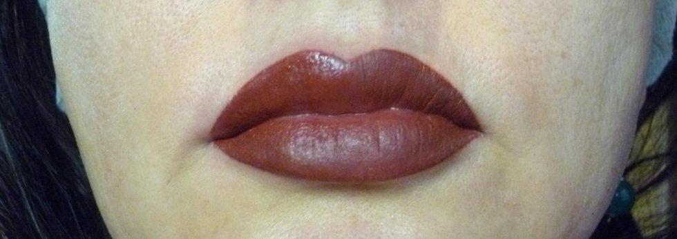 labbra dopo ricostruzione con effetto rossetto