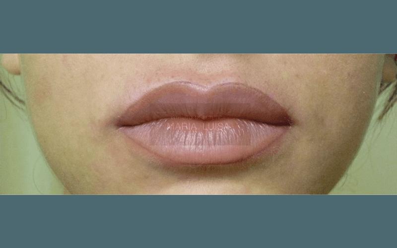 Labbra dopo ricostruzione con sfumatura effetto naturale ( Lavoro appena eseguito )