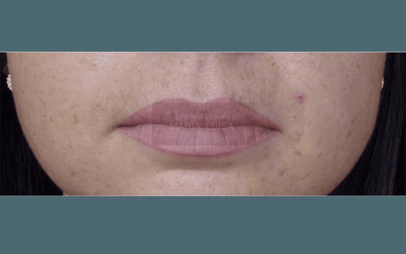 Labbra dopo ricostruzione con sfumatura effetto naturale