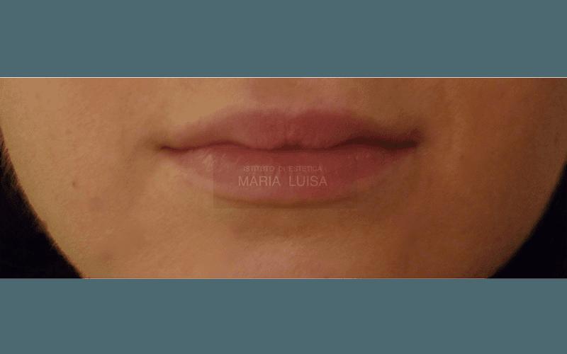 Labbra prima dell