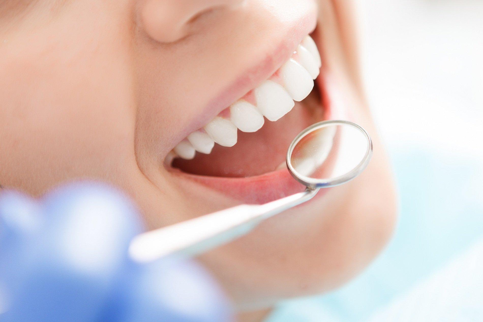 dentista osserva i denti di una paziente