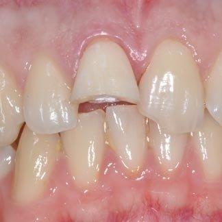 riparazione denti fratturati