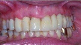 denti con otturazioni