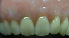 arcata dentale superiore
