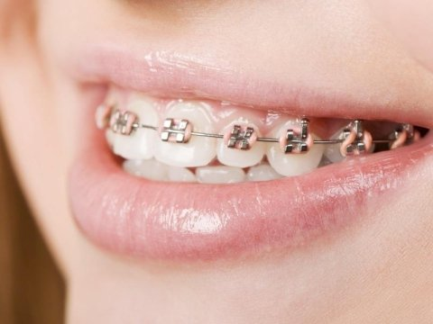 interventi ortodonzia