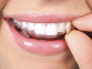 Ortodonzia mobile e invisibile