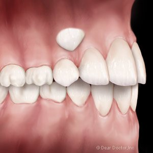 Exposing And Preserving Impacted Canine Teeth