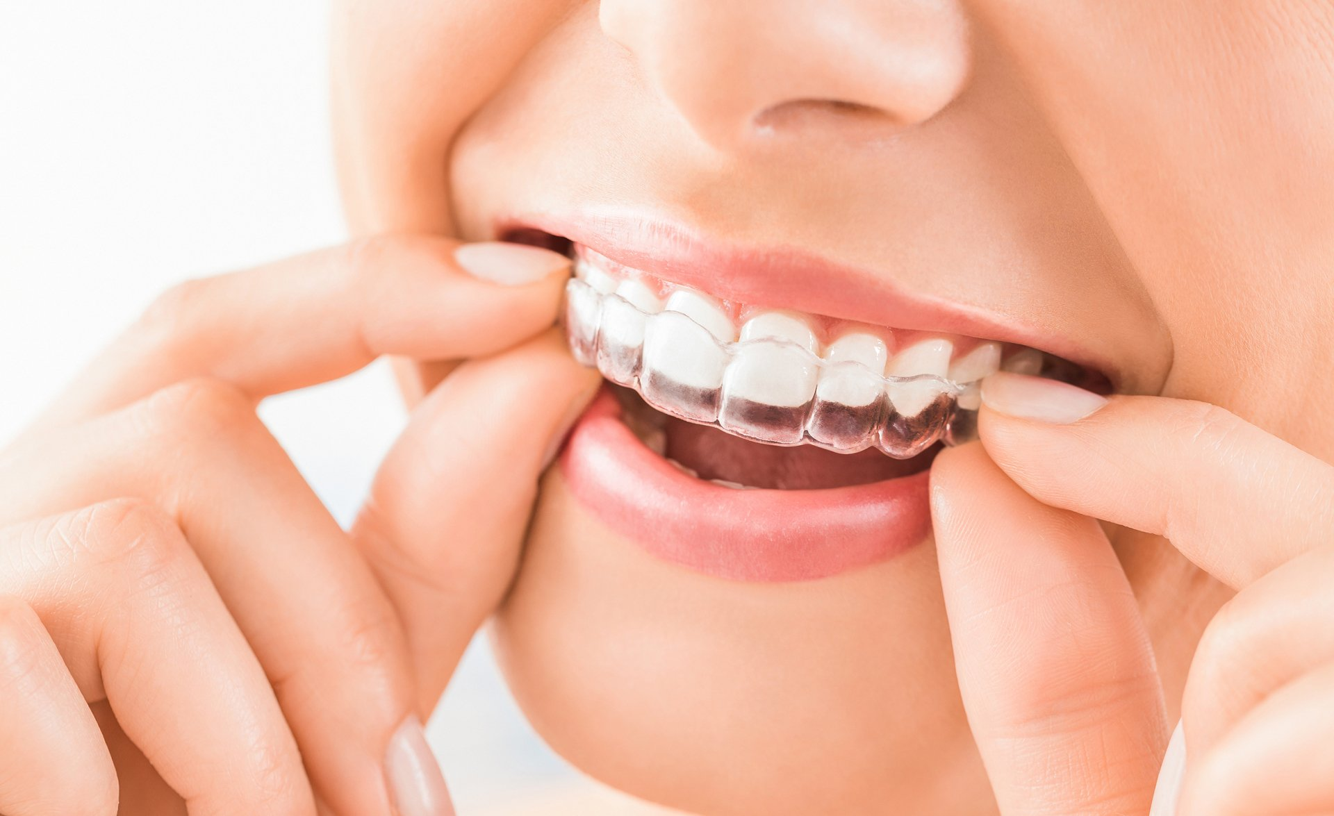 Most Trusted Orthodontic Dentistry In Ajax • Miskin Dental