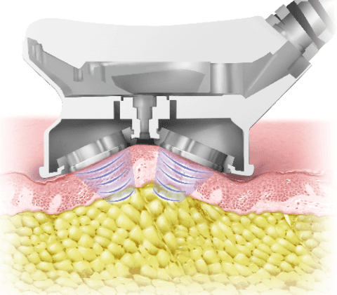 Cavitazione Ultrasonica