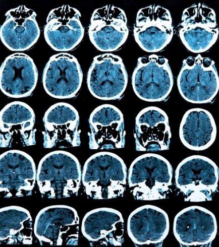 Tumori alla testa, otorinolaringoiatria, Montesi Pino
