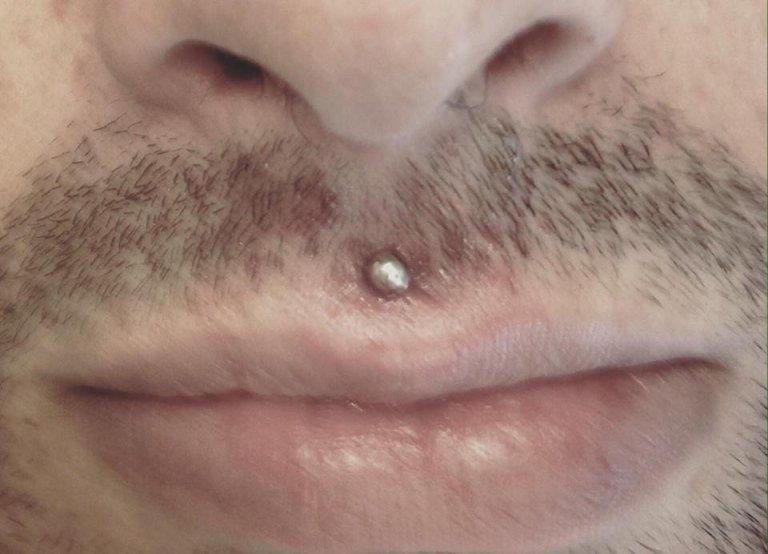 piercing sopra labbro sotto naso