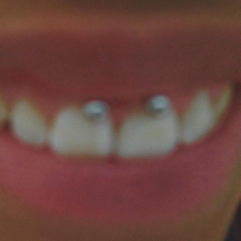 piercing bocca