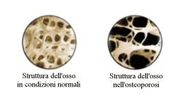 Trattamento dell'osteoporosi, Firenze