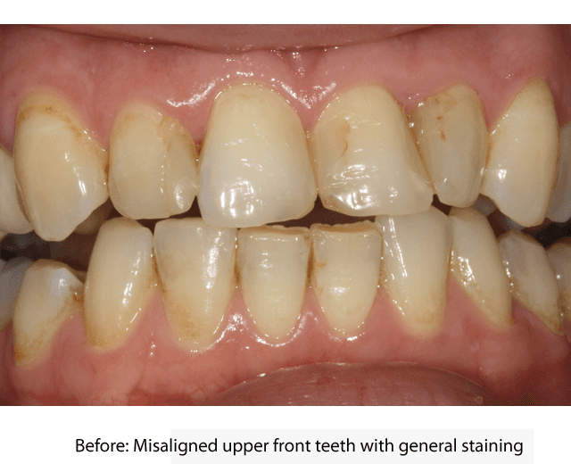 Stained, misaligned upper front teeth