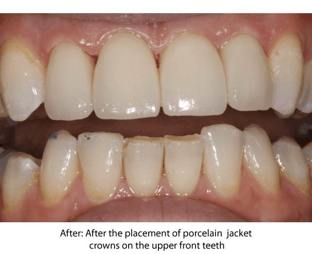 Upper front teeth improved with porcelain jacket crowns