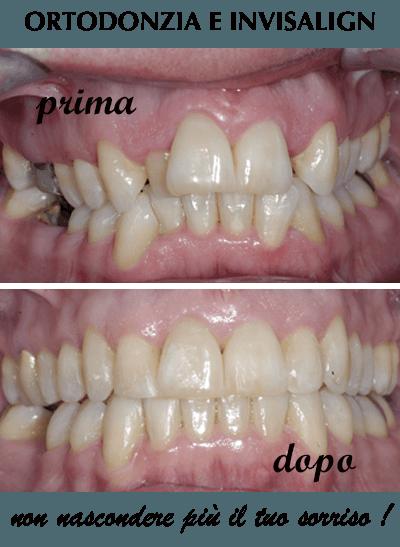 ortodonzia-invisalign