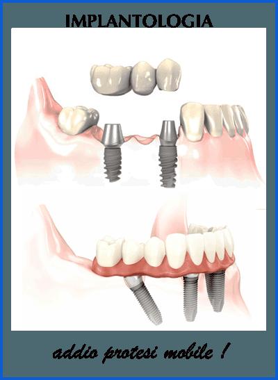implantologia-chirurgia