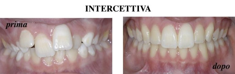 Intercettiva