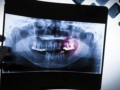 Servizi di chirurgia parodontale