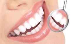 riparazione protesi dentarie,perizie,sbiancamento dentale,otturazioni dentali