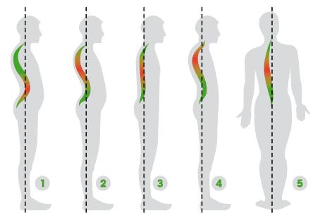 Delle immagini che mostrano la postura della colonna vertebrale