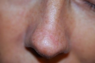 solchi naso labiali, VERRUCA VOLGARE, trattamenti capillari, neoformazioni cutanee