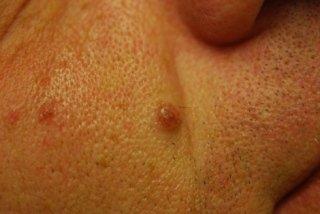 fibromi penduli, DERMATOFIBROMA chirurgia del viso, rimodellamento labbra