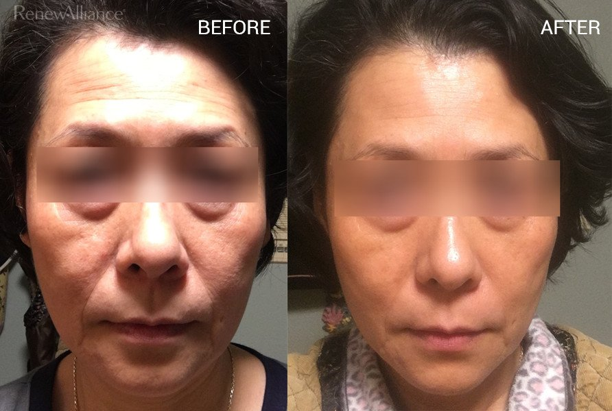 Before & After Drinking 2 Boxes Taut Premium Collagen | RenewAlliance