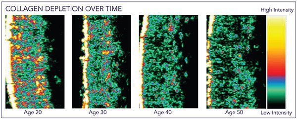 Collagen depletion over time Age 20-50