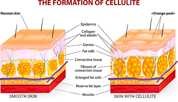 The Formation of Cellulite