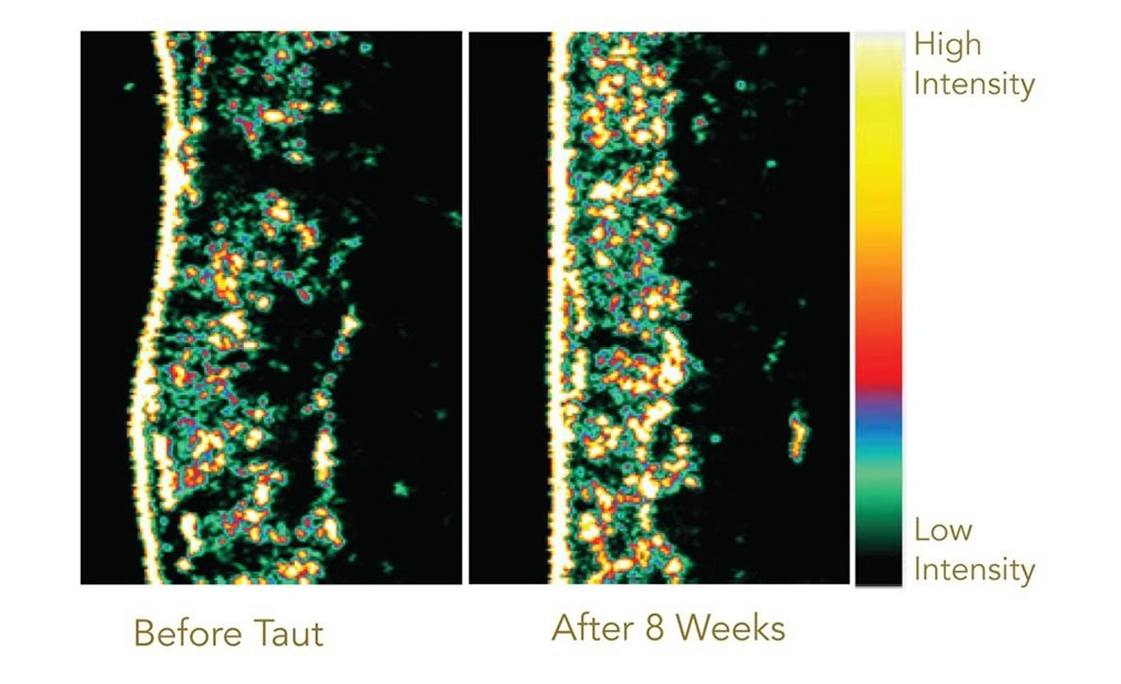 Before and After Drinking Taut Premium Collagen - 8 week clinical study | RenewAlliance dba TautUSA