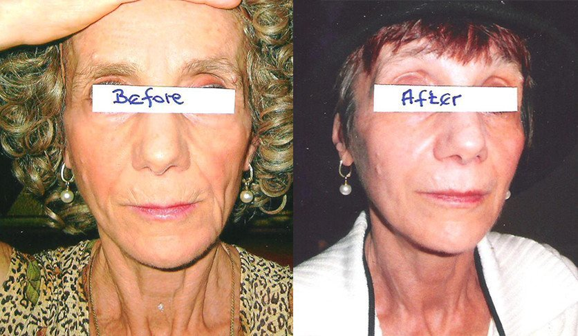 Before and After Drinking Taut Collagen | RenewAlliance