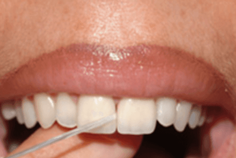 igiene orale, pulizia dentale