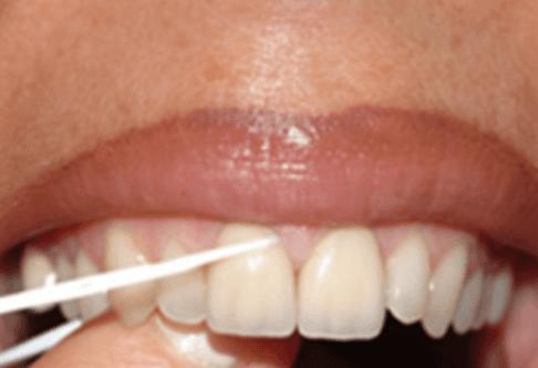 denti, dentista, cura dei denti