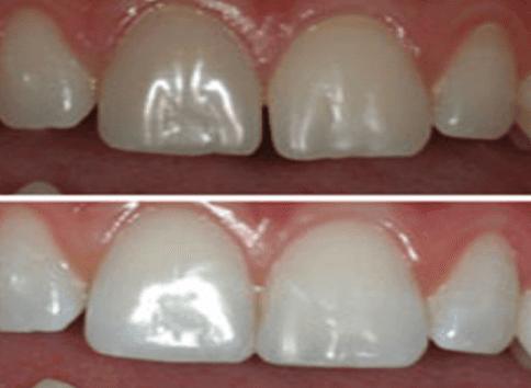 faccette dentali, implantologia, ortodonzia