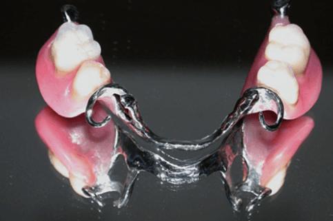 implantologia, assistenza dentistica, dentista