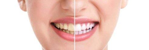 salute orale, implantologia a carico immediato, odontoiatria conservativa per adulti