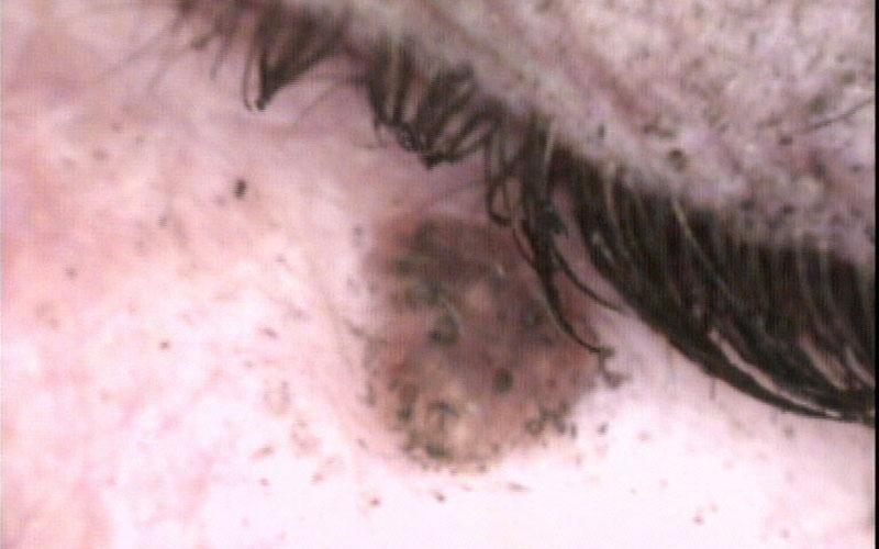 nevo intradermico pigmentato