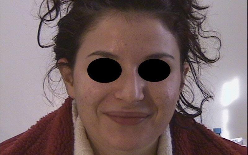 acne peeling piruvico salicilico