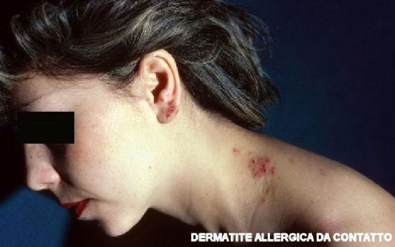 Dermatite allergica contatto