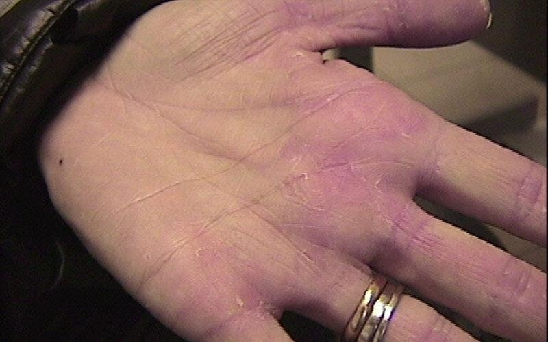 trattamento psoriasi mani
