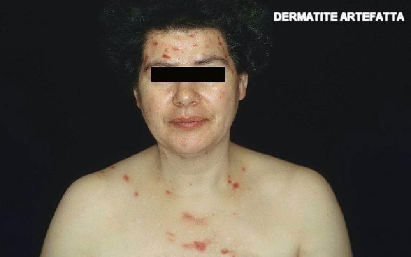 Dermatite artefatta