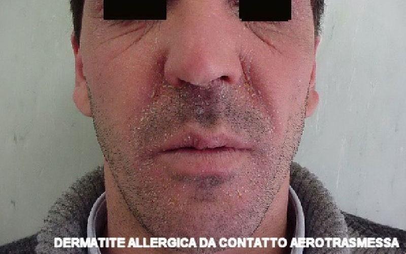 Dermatite allergica aerotrasmessa