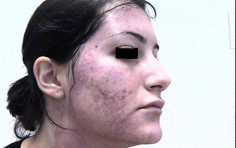 trattamento acne