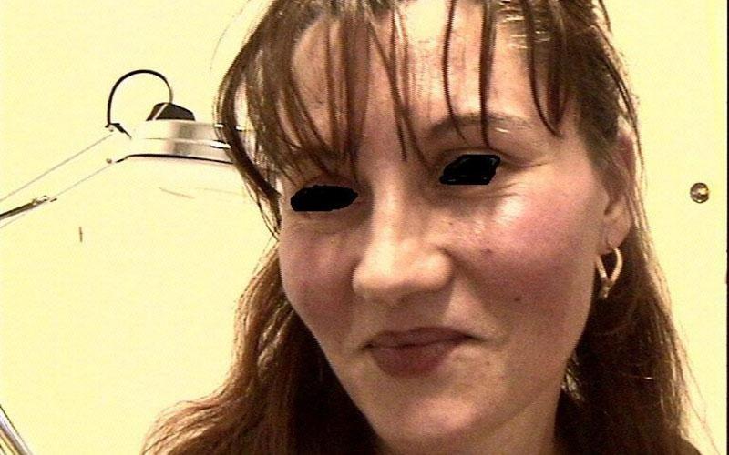 acne rosacea cura metronidazolo
