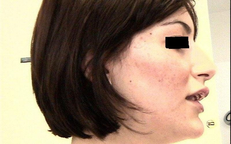 acne peeling