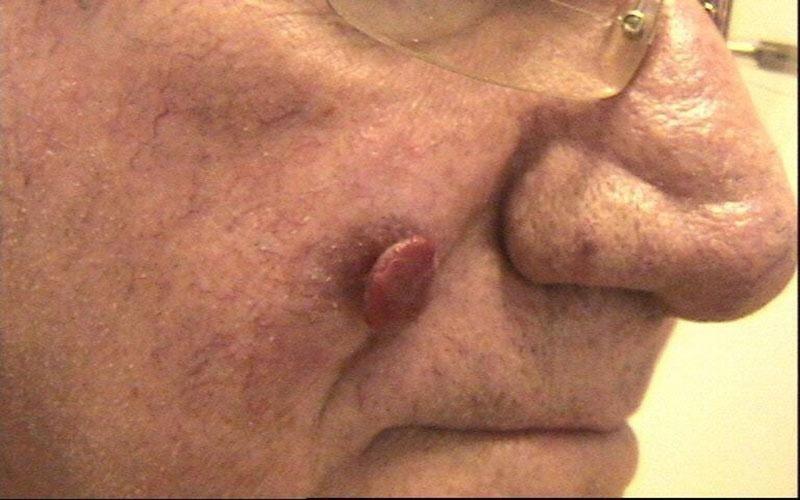trattamento pseudobotriomicoma