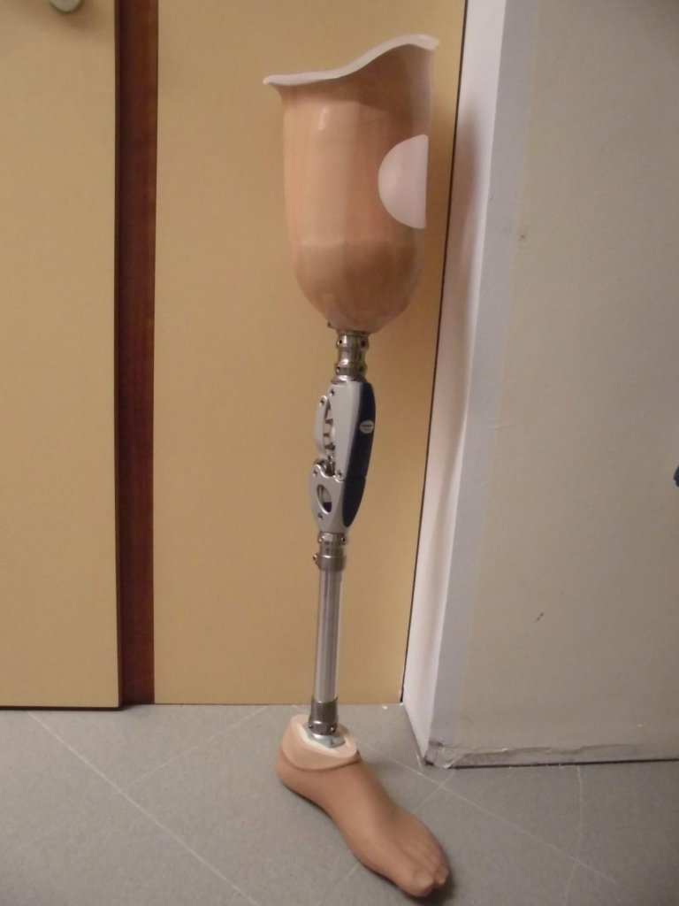 protesi transfemorale