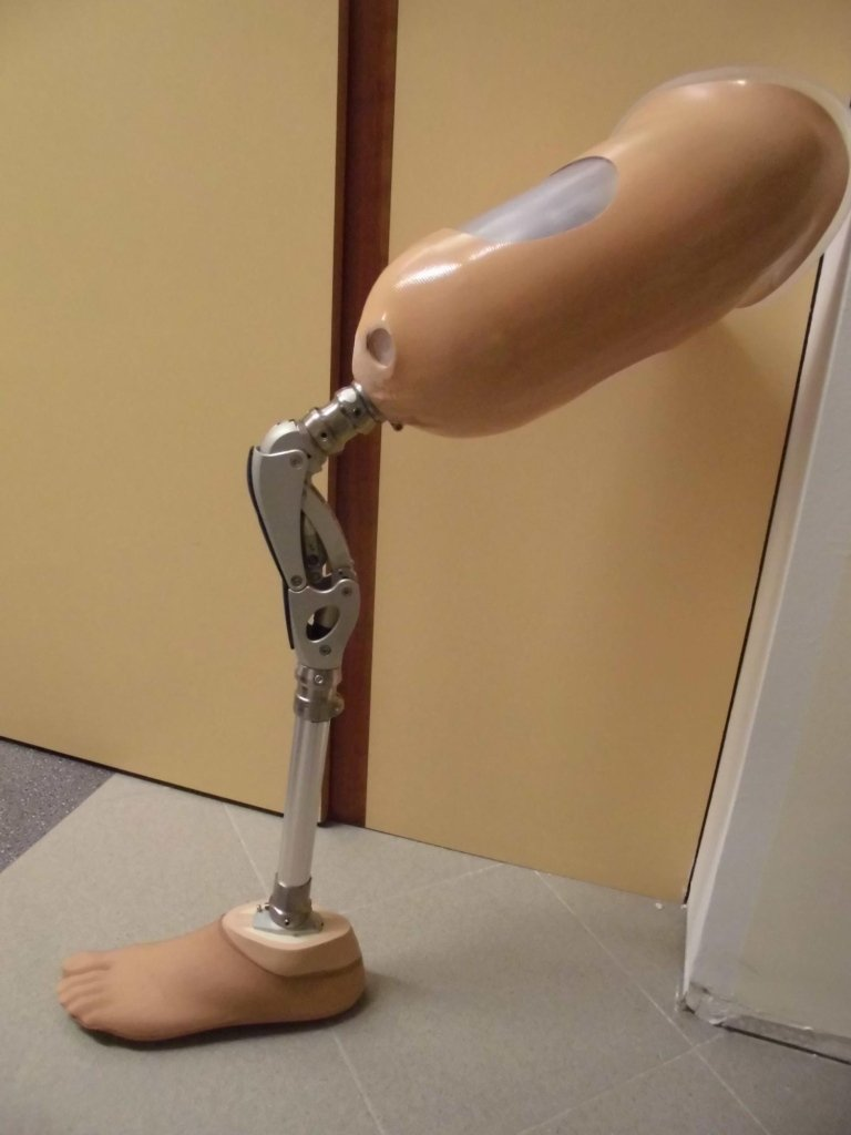 protesi transfemorle
