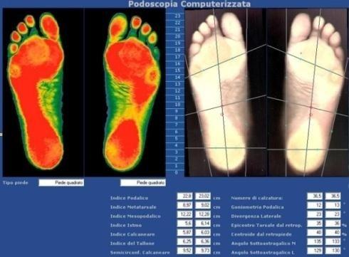 Valutazione anatomica e funzionale del piede